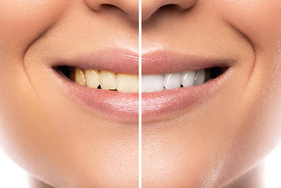 Zahnheilkunde für ein schönes Lächeln