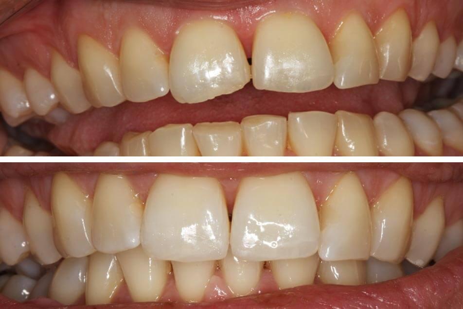 Zahnheilkunde durch Schneidezahn Korrektur