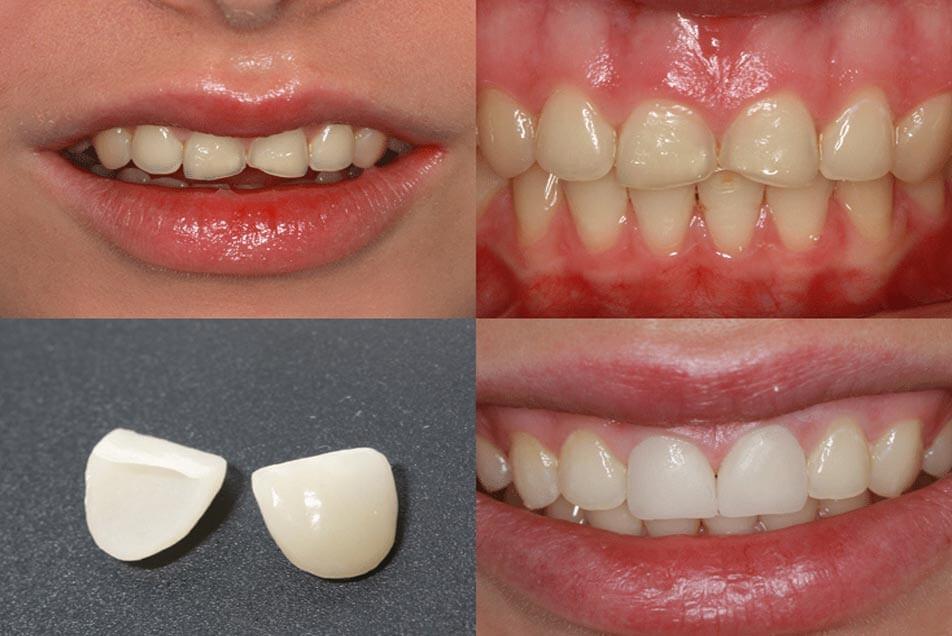 Zahnheilkunde durch Veneers