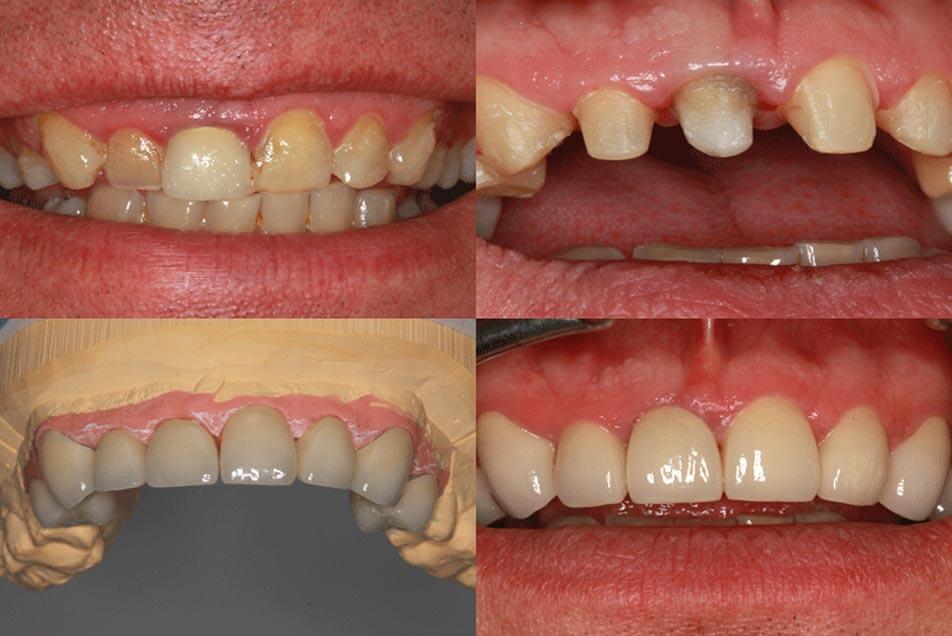 Zahnheilkunde durch keramische Kronen