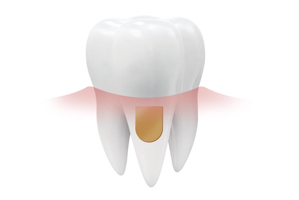 Parodontose mit Periochip behandlen
