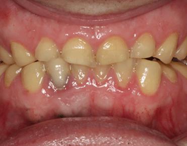 Zahnverschleiß durch Zähneknirschen